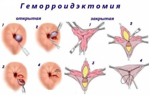 Удаление геморроя хирургическим путем