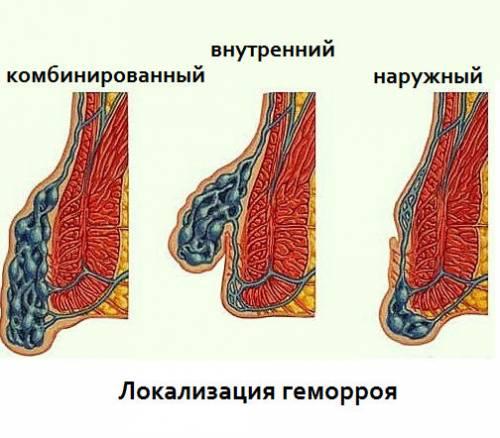 Хронический внутренний геморрой 1 степени