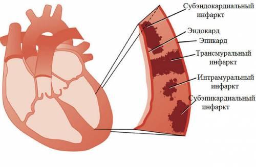 Локализация инфаркта миокарда