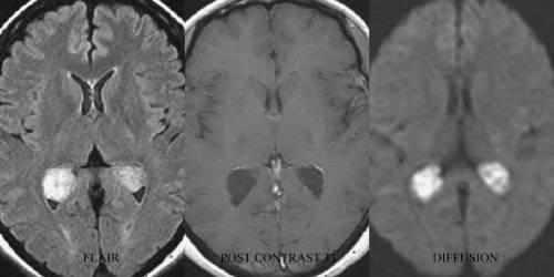 Кисты головного мозга на МРТ
