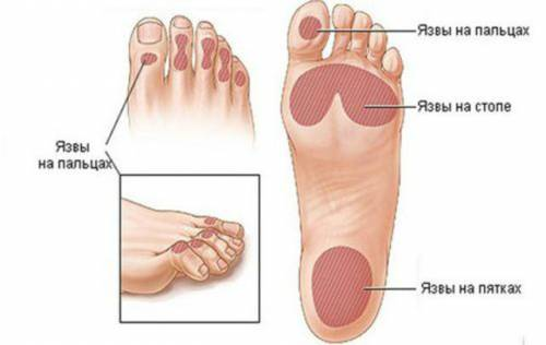 Лечение ног при диабете