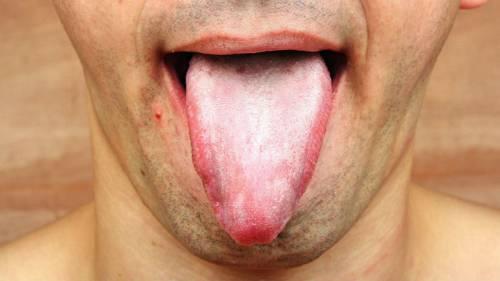 «лакированный» язык