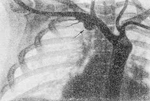 Аневризма подключичной артерии