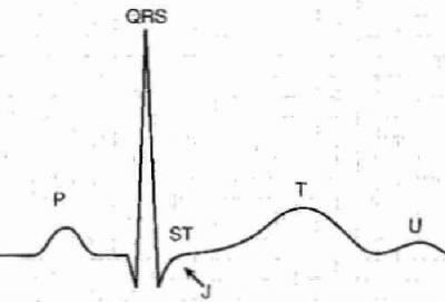 Зубцы кардиограммы