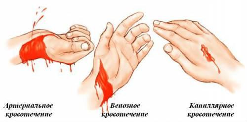 Внешние различия видов кровотечений