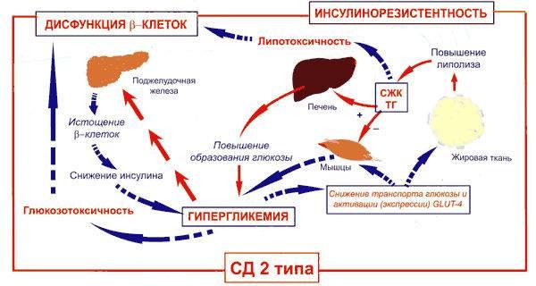 Патогенез сахарного диабета II типа