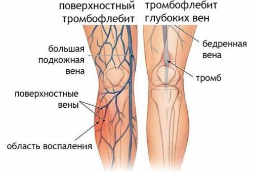 Изображение - Вены голеностопного сустава simp-varikoz-vnkon-2-500x342