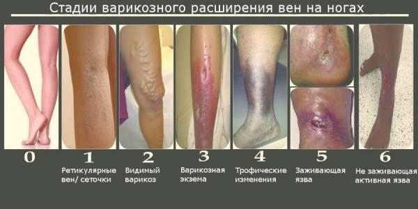 Изображение - Вены голеностопного сустава simp-varikoz-vnkon_-3-600x300