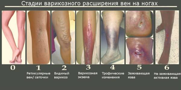 Симптомы варикоза глубоких вен