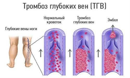 Изображение - Вены голеностопного сустава simp-varikoz-vnkon_-4-500x300