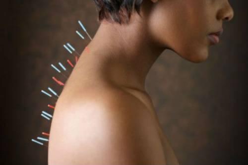 Защемление артерии в шейном отделе