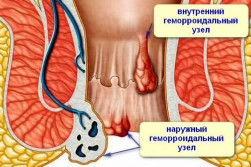 Троксевазин таблетки инструкция по применению при геморрое