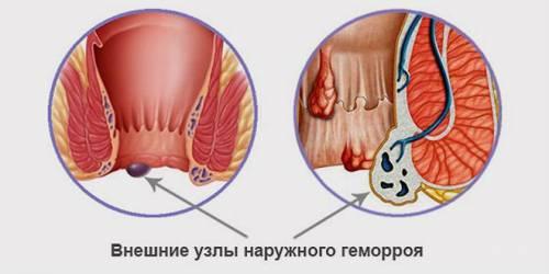 Геморрой выпадение прямой кишки лечение thumbnail
