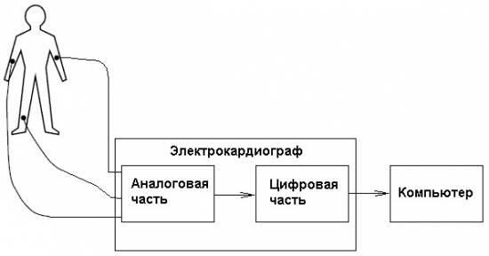 Схема ЭКГ