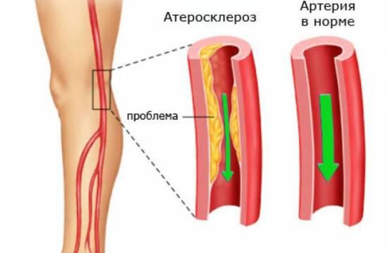 Атеросклероз артерий ног