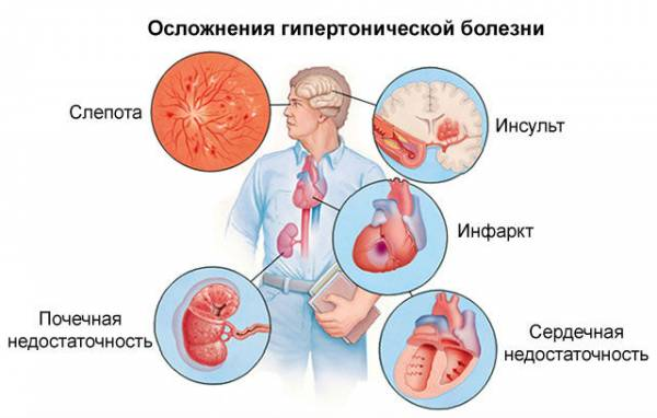 Осложнения гипертонии