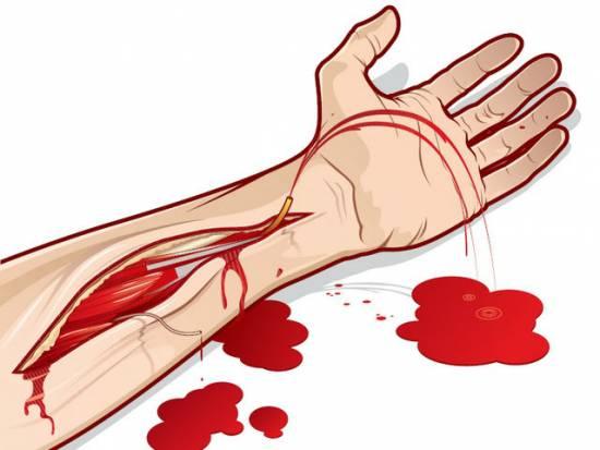 Кровотечение из руки