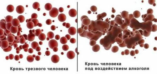 Сгущение крови
