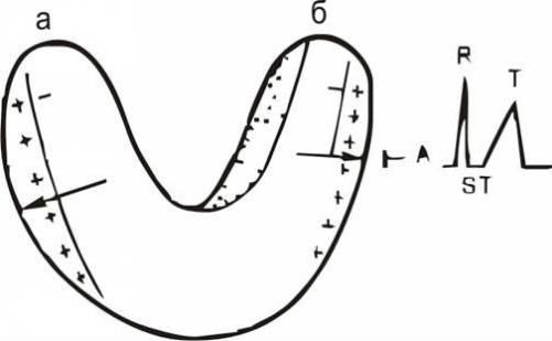 Изменения зубца Т при ишемии передних субэндокардиальных отделов левого желудочка