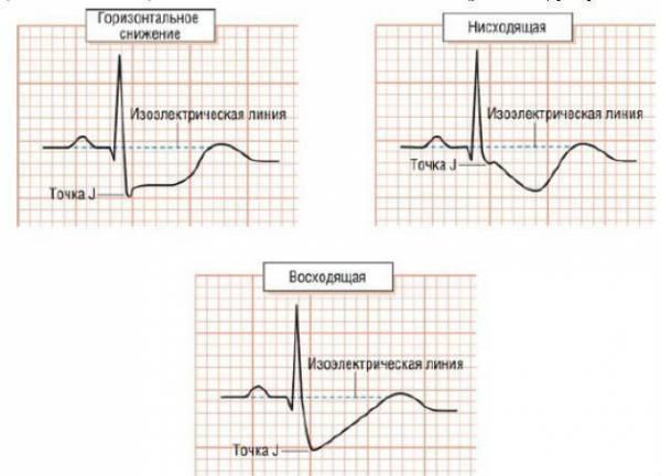 Типы депрессии сегмента ST при ишемии миокарда