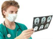 врач смотрит снимок мозга