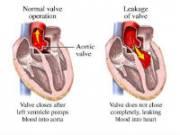 Сердце при аортальной регургитации