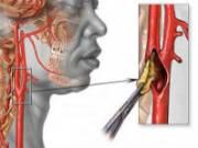 Атеросклеротическая бляшка в сонной артерии