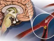 Атеросклеротическая бляшка в сосуде мозга
