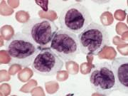 Базофилы в мазке крови
