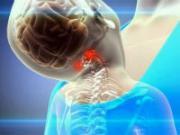 Гипоплазия позвоночных артерий