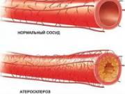 Атеросклероз сосуда