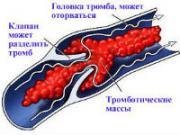 Тромбоз вены