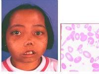 Ребенок с талассемией