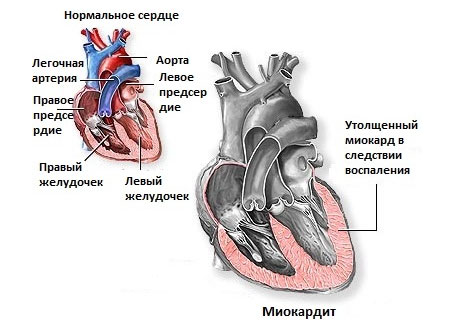 Тупая боль в области сердца что делать